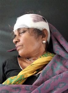 Lakhpati Devi, injured